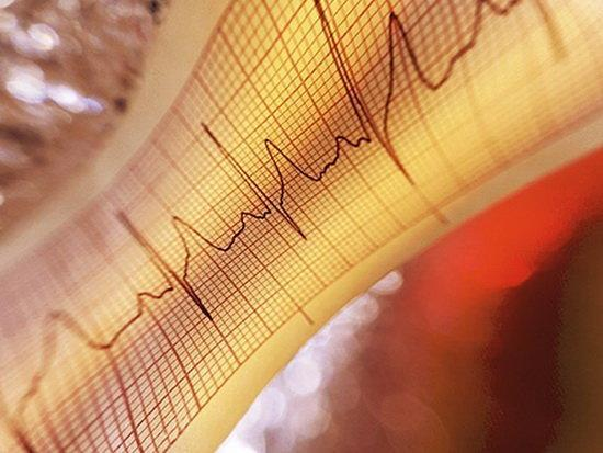 30 درصد سکته های مغزی ناشی از نامنظمی های ضربان قلب است